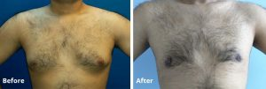 best gynecomastia surgery in gurgaon, Best Plastic Surgeon in Gurgaon