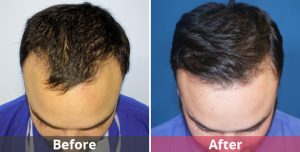 best hair transplant surgeon in gurgaon, hair transplant in gurgaon