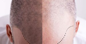 hair transplant in gurgaon, Best hair transplant surgeon in Gurgaon